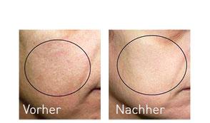 OxyGeneo Vorher/Nachher Vergleich nach 5 Behandlungen