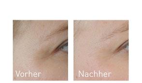 OxyGeneo Vorher/Nachher Vergleich nach einer Behandlung