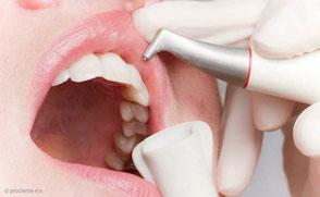 Zahnreinigung mit Pulverstrahlgerät