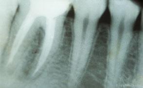 Die Wurzelfüllung auf der Röntgenaufnahme