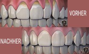 Prophylaxe für Kinder und professionelle Zahnreinigung (PZR), Hilfe gegen Mundgeruch, Mundpflegetipps