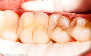 Keramikkrone über dem wurzelbehandelten Zahn