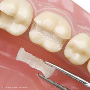 Einlage-Füllungen aus Keramik werden außerhalb des Mundes hergestellt und in einem Stück in den Zahn eingesetzt.