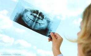 Entfernung von stark Karies-befallenen Zähnen, Weisheitszähnen, Wurzelspitzenresektionen