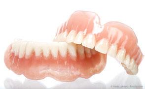 In vielen Fällen kann mit Implantaten festsitzender Zahnersatz an Stelle von Totalprothesen gemacht werden.