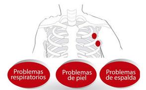 gesret asma psoriasis dermatitis atopica bebés