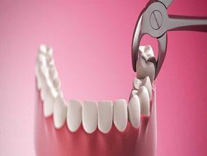 dentista en coyoacan - dentista coyoacan - consultorio dental