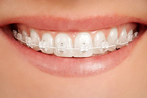 feste Zahnspange in Zahnfarbe