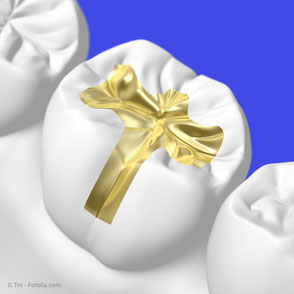 Gold-Inlays haben eine sehr lange Haltbarkeit und hohe Stabilität. Ihre auffällige goldene Farbe wird von manchen Patienten allerdings als störend empfunden.