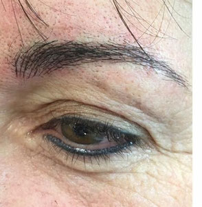 Na de ingreep microblading