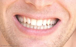 Medikamentöse Regeneration des Zahnhalteapparates