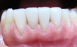 Veneers der unteren vier Schneidezähne bei einer Raucherin vier Jahre nach dem Einsetzen: Es sind keinerlei Verfärbungen sichtbar und das Zahnfleisch ist gesund.