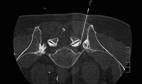 Radiologische Aufnahme einer PRT-Bahandlung