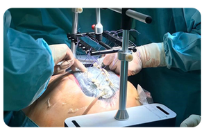 Fasciotens Abdomen Anwendung am offenen Abdomen
