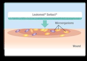 Erstes Foto: auflegen des Cutimed Sorbion Sorbact auf die Mikroorganismen