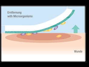 Drittes Foto: Entfernung des Cutimed Sorbion Sorbact mitsamt der Mikroorganismen