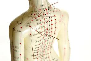 Akupunktur Baden, TCM, Meridiane, Praxis Riva Baden