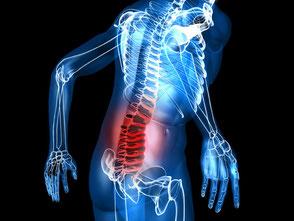 Le cause e i fattori di rischio del mal di schiena