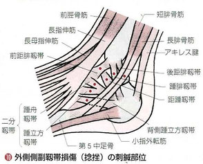 靭帯は軟部組織(ファッシア)です。1mm以下の細い線状の硬結をねらいます。