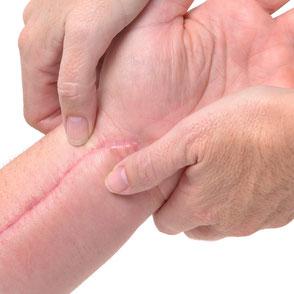 Behandlung von Narben mit Massage