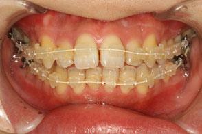 歯科矯正装置