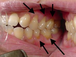 八戸市 歯医者 くぼた歯科医院 知覚過敏 虫歯 ホワイトニング