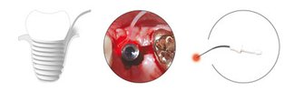 PACT®-Therapie von Implantat-Entzündungen © cumdente.com
