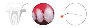 PACT®-Parodontitis-Therapie © cumdente.com