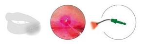 PACT®-Knochen- und Weichgewebs-Therapie © cumdente.com