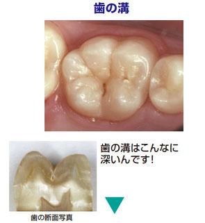 八戸市の歯医者くぼた歯科医院シーラント