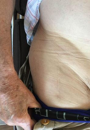cirugia orthopdia cadera Toulouse Castelnaudary Dr Julien Rémi St Jean du Languedoc La Croix du Sud