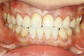 歯茎の再生と矯正後