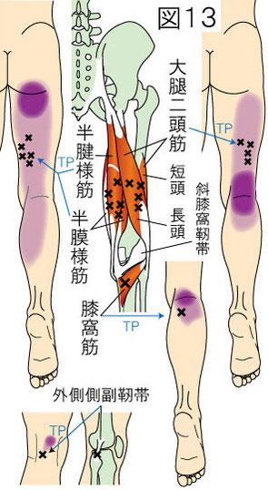 ハムストリングス・膝窩筋・外側側副靭帯トリガーポイントによる大腿・膝・下腿の痛み