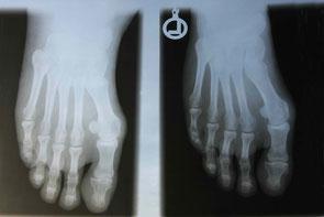 Röntgen Hallux