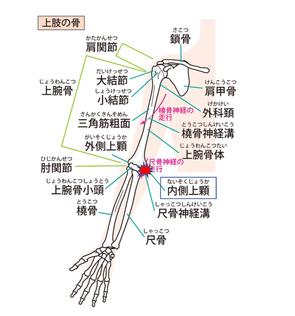内側上顆の位置。筋肉のけん引力が付着部にストレスを与え炎症が起こる。ゴルフ肘、野球肘