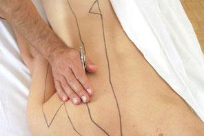 Akupunktmassage nach Willy Penzel (APM) WELLSANA Physiotherapie Basel