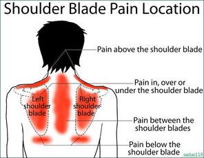 肩 甲骨 周り の 痛み