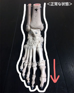 土ふまずがあると指はまっすぐです。正面から見ると、かかとは見えません。
