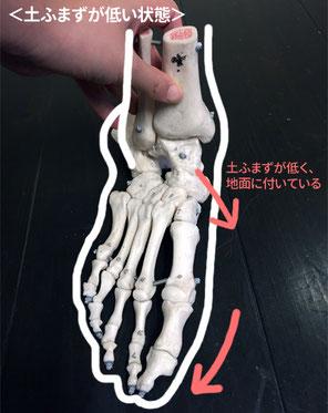 土ふまずが低くなると指が外へ流れます。また、かかとの骨も外側に向いて「>」のような形に。