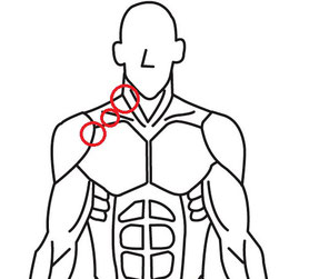 頸椎ヘルニア以外の腕の痺れの原因