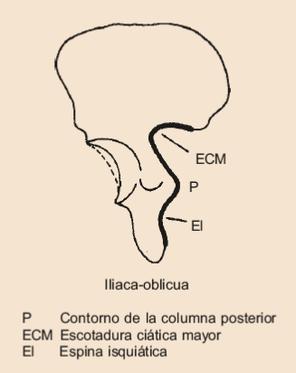 PROYECCION ILIACA OBLICUA