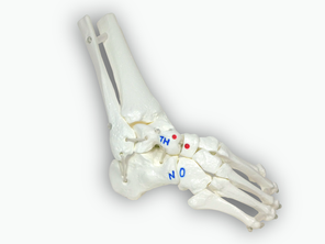 Clubfoot, functional bone model