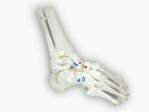 Klumpfuß, anatomisches Knochenmodell