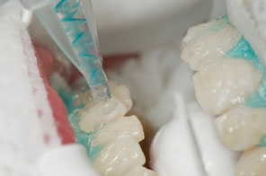 Das In-Office-Bleaching - Zahnaufhellung in einem Termin - © proDente e.V.
