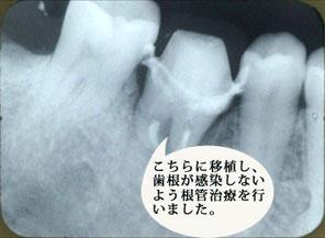 自家歯牙移植3