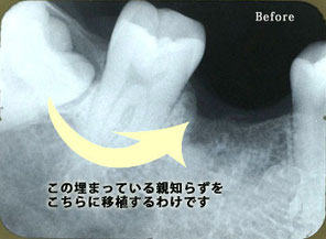 自家歯牙移植2