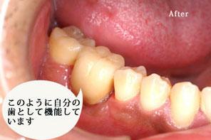 自家歯牙移植4