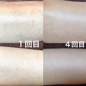 腕脱毛(Before/After)