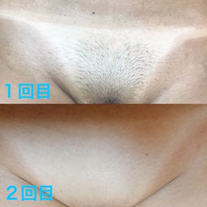 VIO脱毛(Before/After)