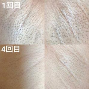 ワキ脱毛(Before/After)